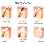 The Acne Files: From A to Zit. In depth acne info, causes, best products and treatment.