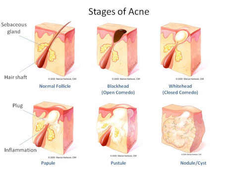 The Acne Files From A To Zit